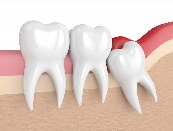 Quanto Custa Extrair um Dente Siso