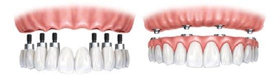 Quanto Custa uma Prótese Dentária Fixa